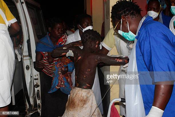 TOPSHOT A badly burned child arrives at the Provincial Hospital in Tete on November 17 after a truck carrying petrol burst into flames At least 43...