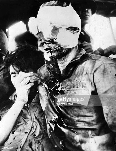 A badly wounded South Vietnamese soldier during the Vietnam War