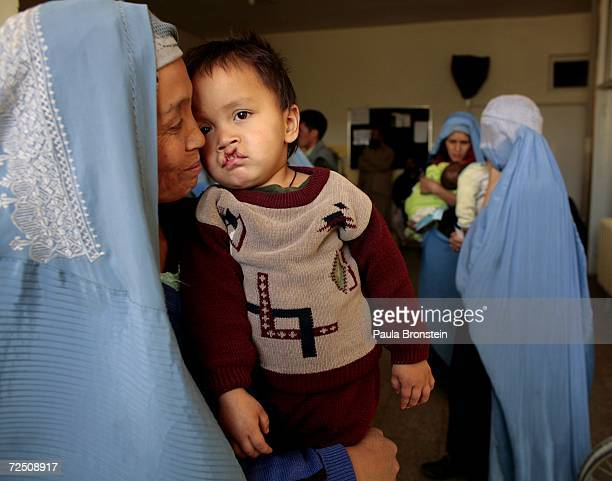 Bageer waits with his mother to be seen at a special clinic to help cleft lip and palate patients at the CURE International hospital in Kabul...