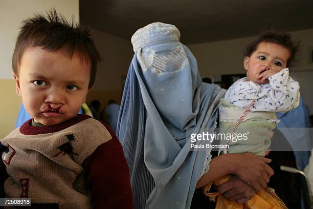 Bageer waits with other Afghan children to be seen at a special clinic to help cleft lip and palate patients at the CURE International hospital in...