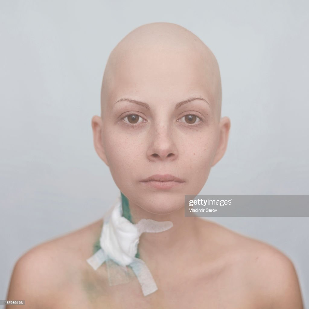 Bald Caucasian cancer patient with bandage on neck : Stock Photo