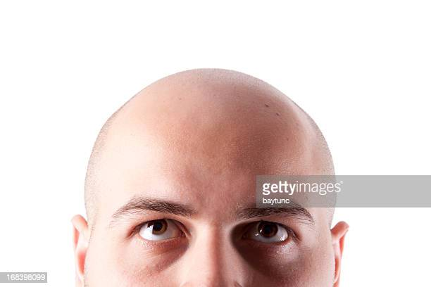 bald head - hair loss stock pictures, royalty-free photos & images