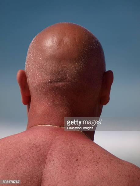 Bald headed man going red in the sun Cornwall UK