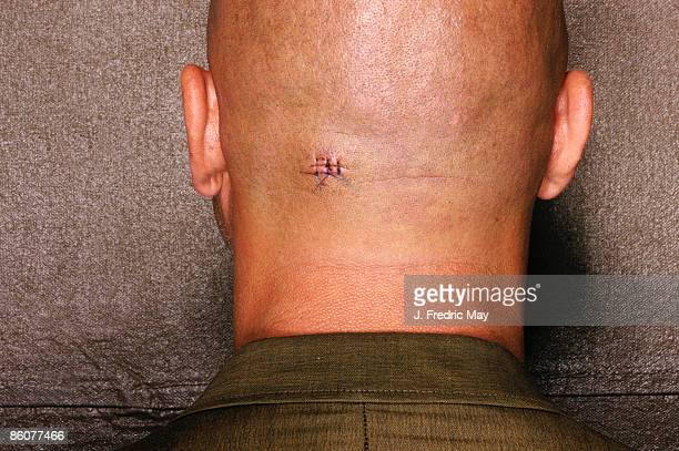 bald headed man with stitches on his head - scar stock photos and pictures