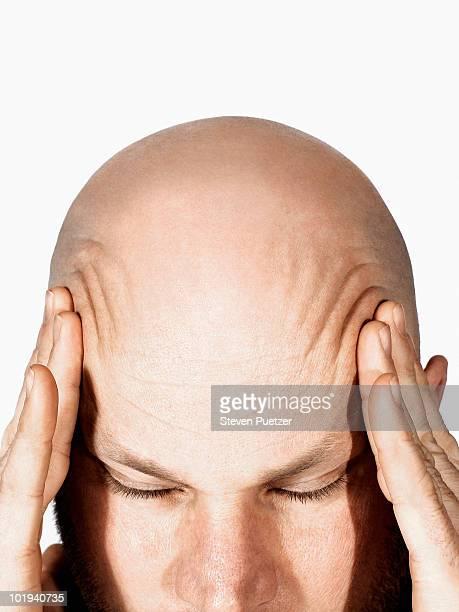 bald man rubbing temples, headache - homme chauve photos et images de collection