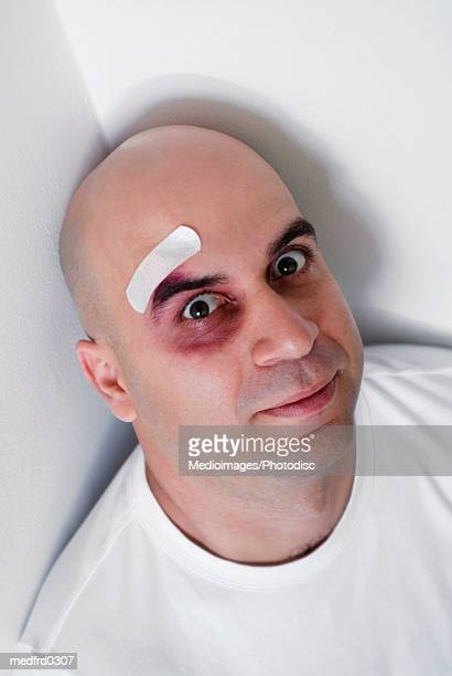 Bald man with bandage and black eye, extreme close-up, tilt