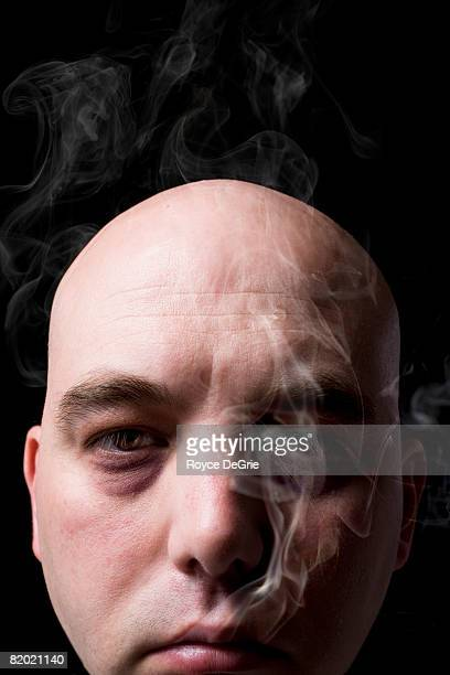 Bald man with very dark circles under his eyes exhales smoke from his mouth.