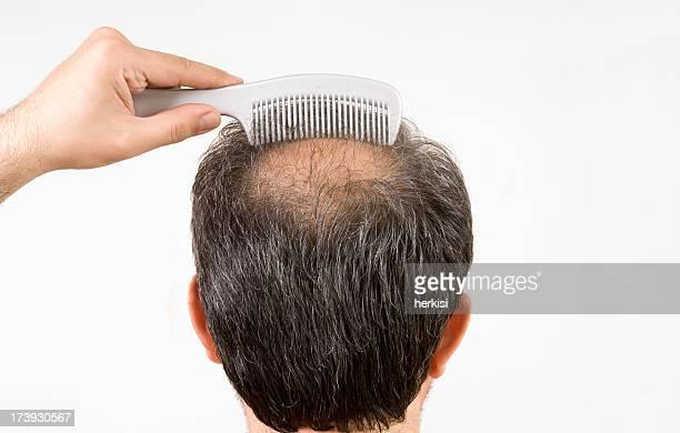 bald men is combing his hair