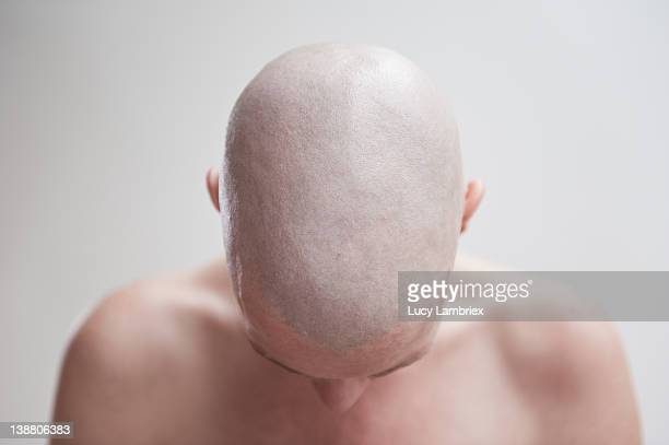 Bald woman bowing her head