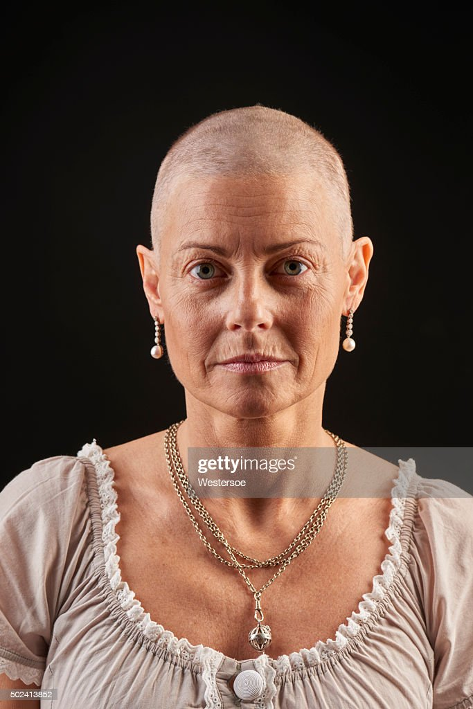 Bald woman in chemotherapy fighting cancer : Stock Photo