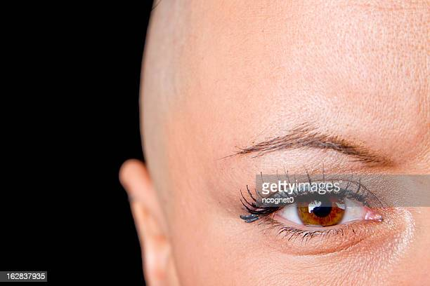 A bald woman who is a cancer survivor