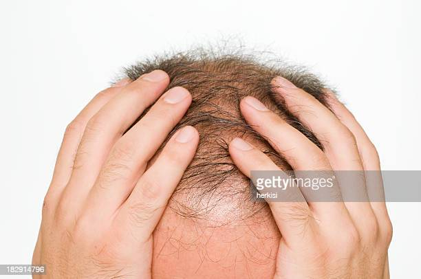Balding man holding his head in his hands