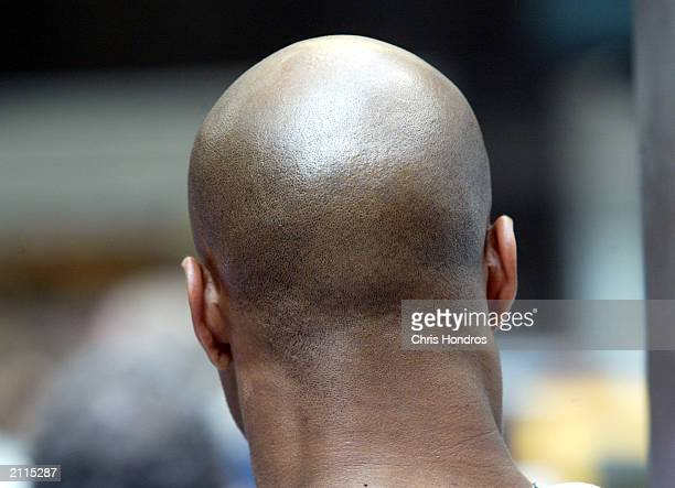 NEW YORK JUNE 26 A balding man stands in Midtown Manhattan June 26 2003 in New York City Researchers have discovered that the baldness fighting drug...