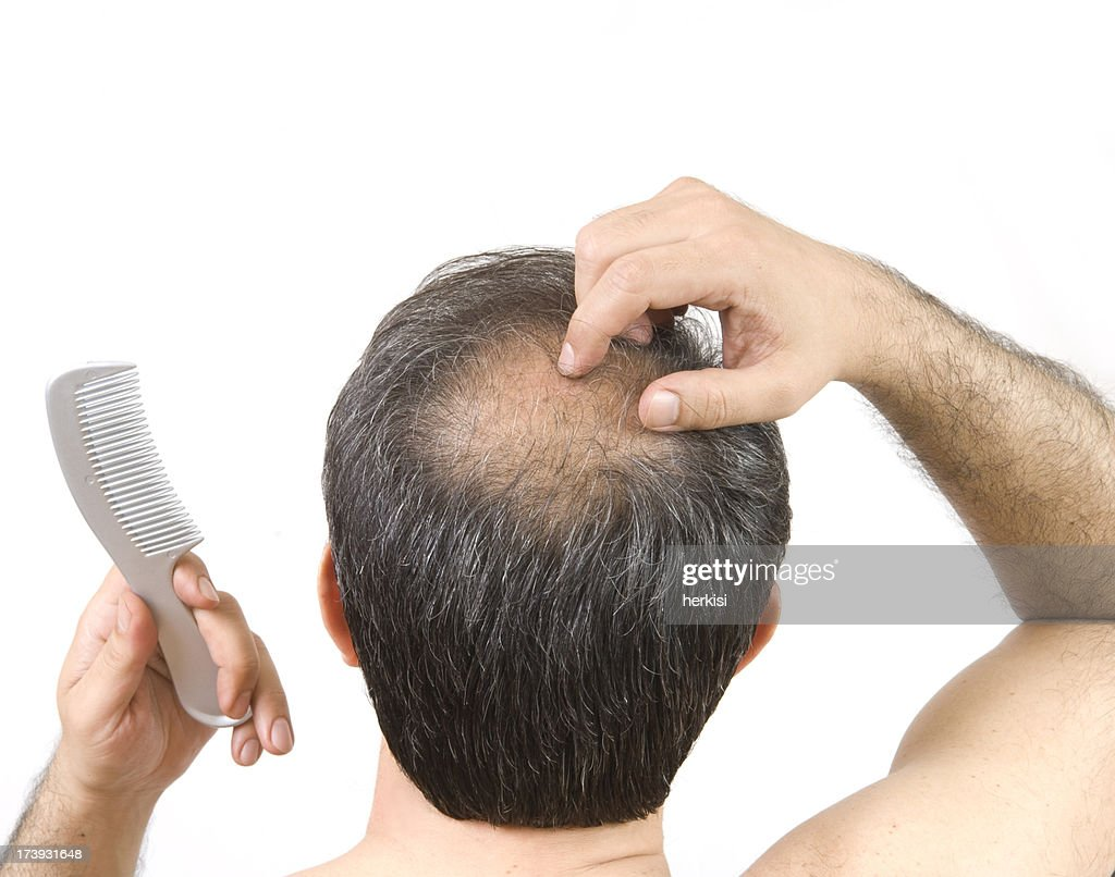 balding : Stock Photo