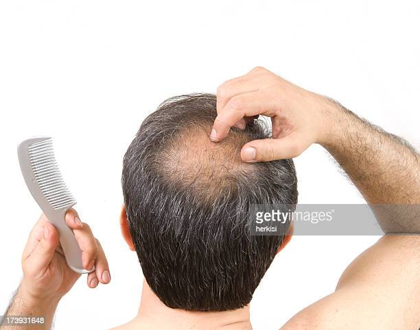 balding - hair loss stock pictures, royalty-free photos & images