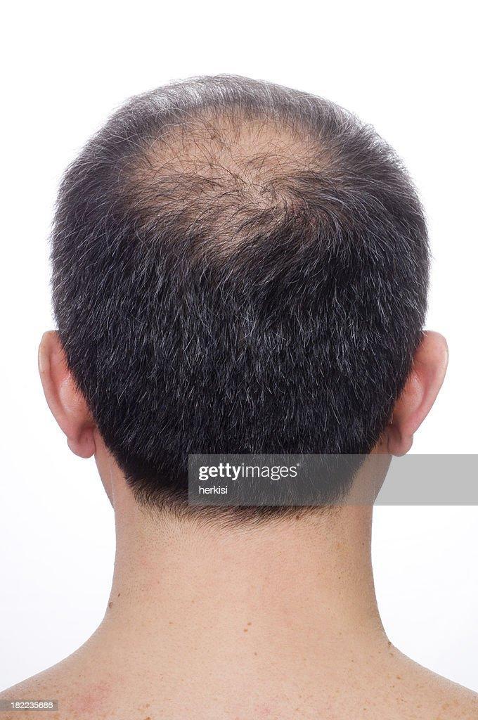Balding : Stock Photo