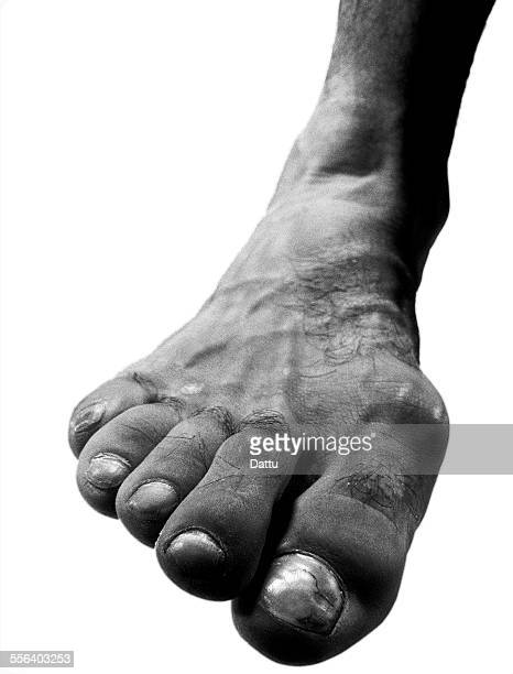 ballet dancers foot - hallux valgus photos et images de collection