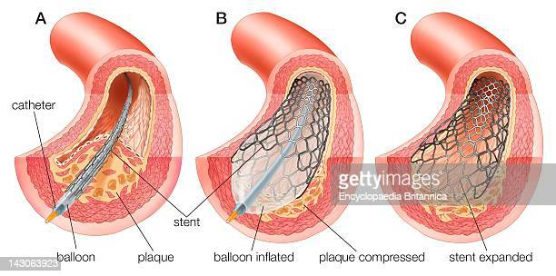 Balloon Angioplasty And Stent Insertion