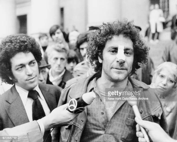 Bandage adorns the nose of Yippie Abbie HOffman as he leaves Federal Court and talks with the press Abbie says his nose was hurt in fracas with cop...