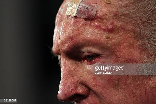 A bandage is seen on the forehead of Oakland Raiders owner Al Davis as he speaks during a press conference on January 18 2011 in Alameda California...