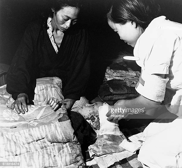 A bandaged child hurt in the atomic bomb blast at Hiroshima Japan receives care from her mother and a nurse's aide