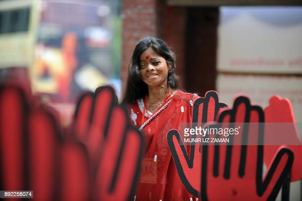 A Bangladeshi acid attack survivor poses as she attends a rally to mark the tenth anniversary of the Acid Survivors Foundation in Dhaka on May 12...