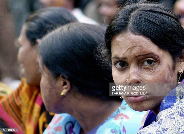 Bangladeshi acid attack victim Masuda takes part with others in a ceremony to mark International Women's Day in Dhaka 07 March 2005 Thousands of...