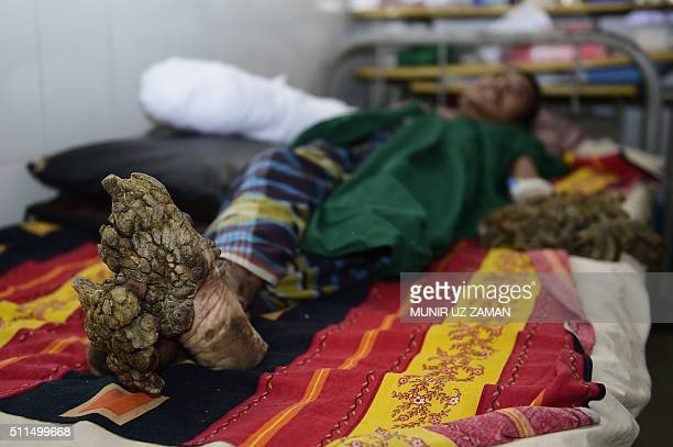 Bangladeshi man Abdul Bajander rests a day after a surgery at Dhaka Medical College Hospital in Dhaka on February 21 2016 A Bangladeshi man dubbed...