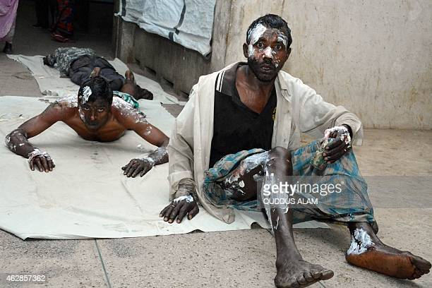 Bangladeshi residents who suffered burn injuries look on at a hospital after a petrol bomb attack on a bus in Gaibandha some 285 km from Dhaka on...