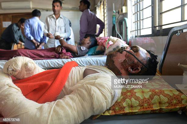 A Bangladeshi victim who suffered burn injuries during an attack on a bus recuperates at the Dhaka Medical College Hospital in Dhaka on November 30...