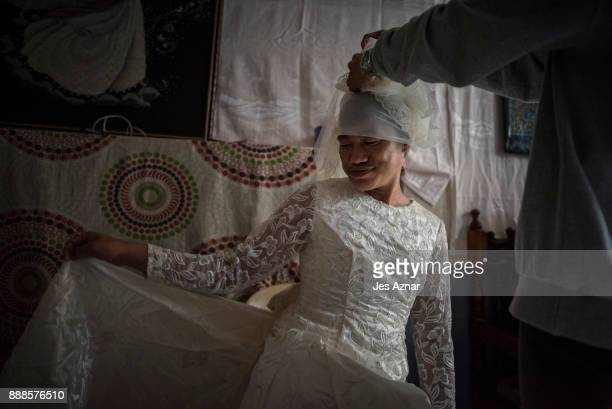 Barbie tries on a gown inside her friend's house on October 20 2017 in Saguiaran southern Philippines Barbie is from Marawi city and suffers from...