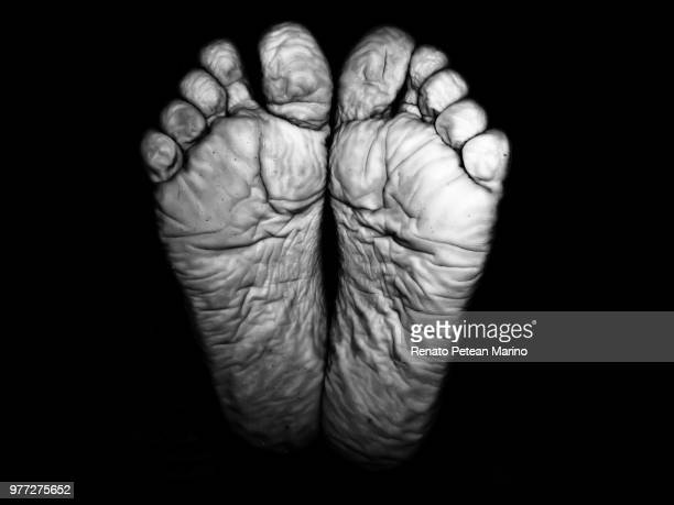 bare crease feet, piracicaba, brazil - images of ugly feet stock photos and pictures