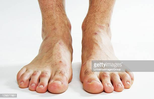 Bare feet of young man