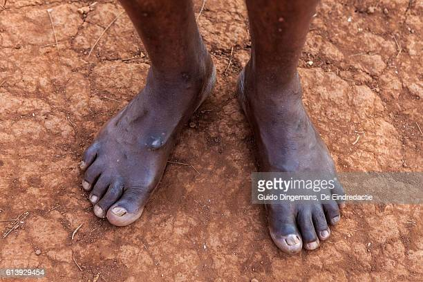 Bare feet on dry African soil