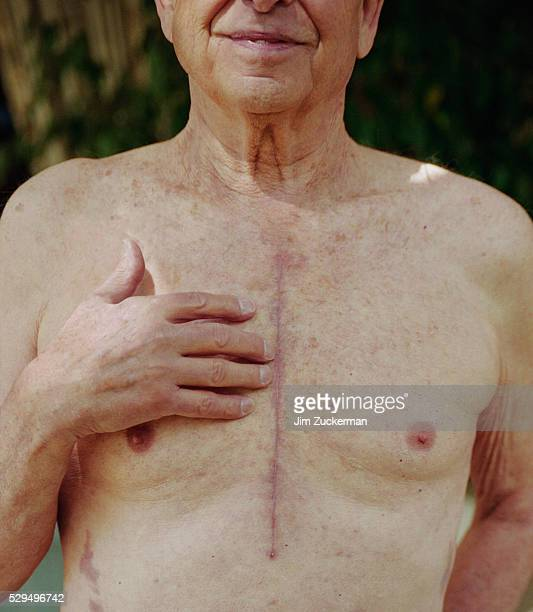 barechested senior man showing heart surgery scar - heart surgery scar stock pictures, royalty-free photos & images
