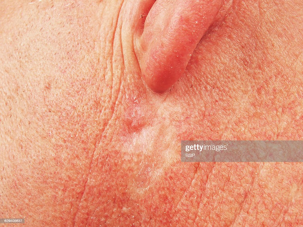 Basal cell carcinoma : ニュース写真