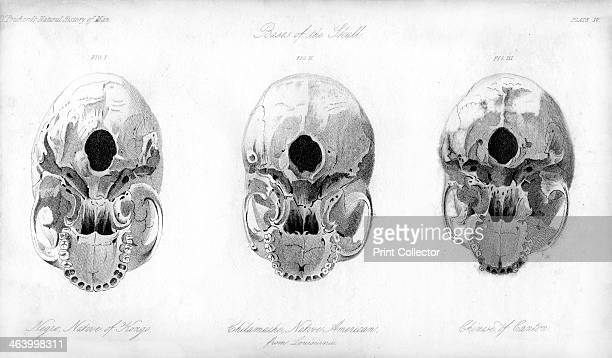 Base of the skull 1848 Comparison of a Negro Chilamache native American and Chinese During the 19th century it was believed that negroes and other...