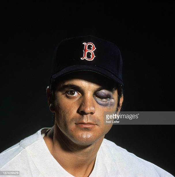 Closeup portrait of Boston Red Sox Tony Conigliaro during photo shoot Conigliaro with black eye makeup representing the injury he received after...