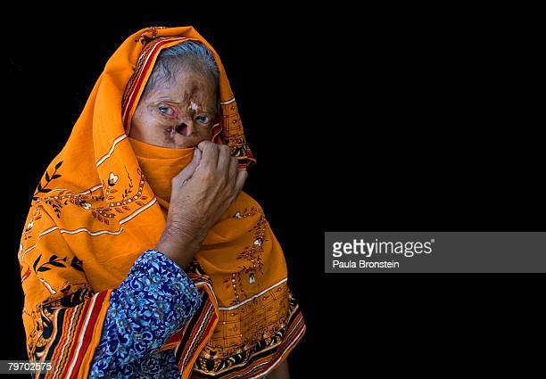 Bashiran Bibi from Sukhiki in the Punjab region poses showing a face that is severly deformed from her burns June 24 2007 in Islamabad Pakistan...