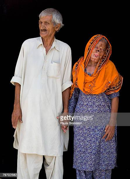Bashiran Bibi from Sukhiki in the Punjab region poses with her husband showing a face that is severly deformed from her burns June 24 2007 in...