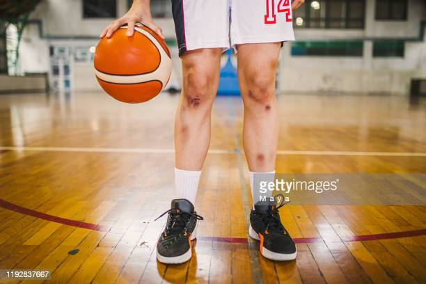 basketball injuries - leg wound stock pictures, royalty-free photos & images