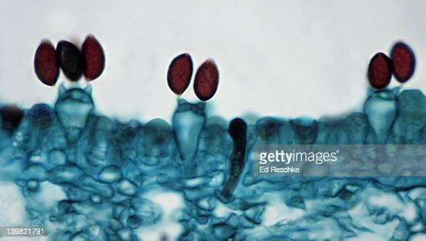 Bassidia & basidiospores. Inky Cap Mushroom (Coprinus), 250X at 35mm. Shows: basidia, basidiospores, sterigma and portion of gill. Kingdom Fungi, Phylum Basidiomycota (basidiomycetes or club fungi).