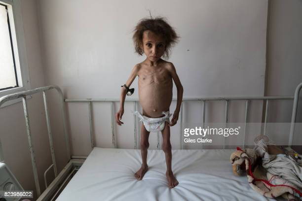 APRIL Batool Ali aged 6 stands on a hospital bed in Saada Batool suffers from severe acute malnutrition At the time the photograph was taken Batool...