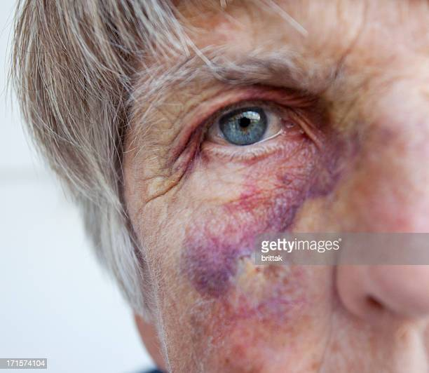 battered senior woman. close up of black eye. - bruise stock photos and pictures