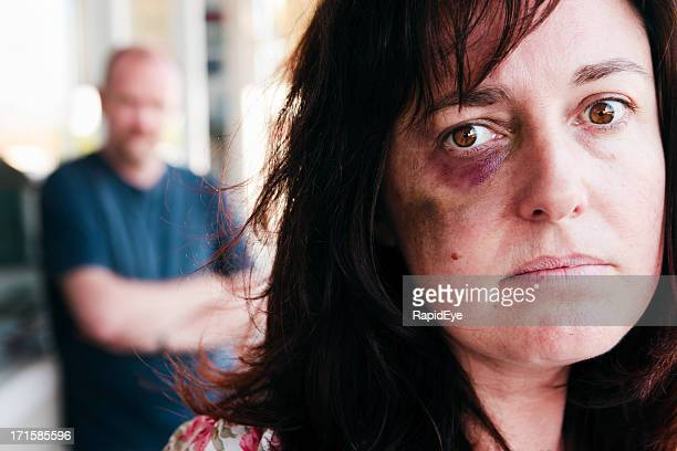 Battered woman gazes sadly at camera; bully lurks behind her