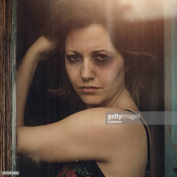 battered woman - beaten up face stock photos and pictures