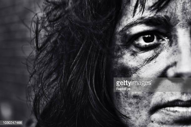 Battered woman's face in stark black-and-white