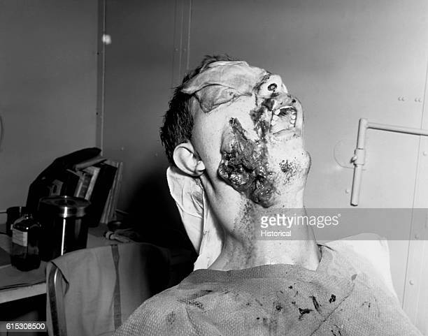 Battle casualties of Iwo Jima Volcano Islands in Base Hospital on Guam for surgical treatment April 6 1945 | Location Base Hospital Guam