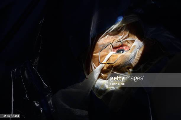 A beam of light illuminates the left eye of cataract patient Obdulia aged 60 during surgery at the IRO on April 20 2018 in Trujillo Peru Having...