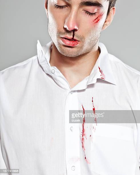 batido hombre - hombre golpeado fotografías e imágenes de stock